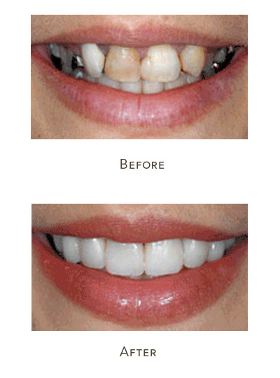 messed up teeth fix with veneers
