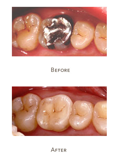remove metal filling from your tooth