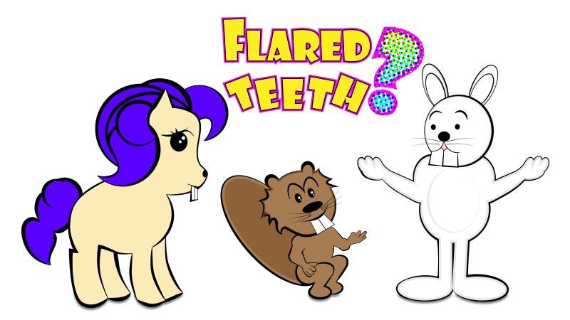flared-teeth-fix-how