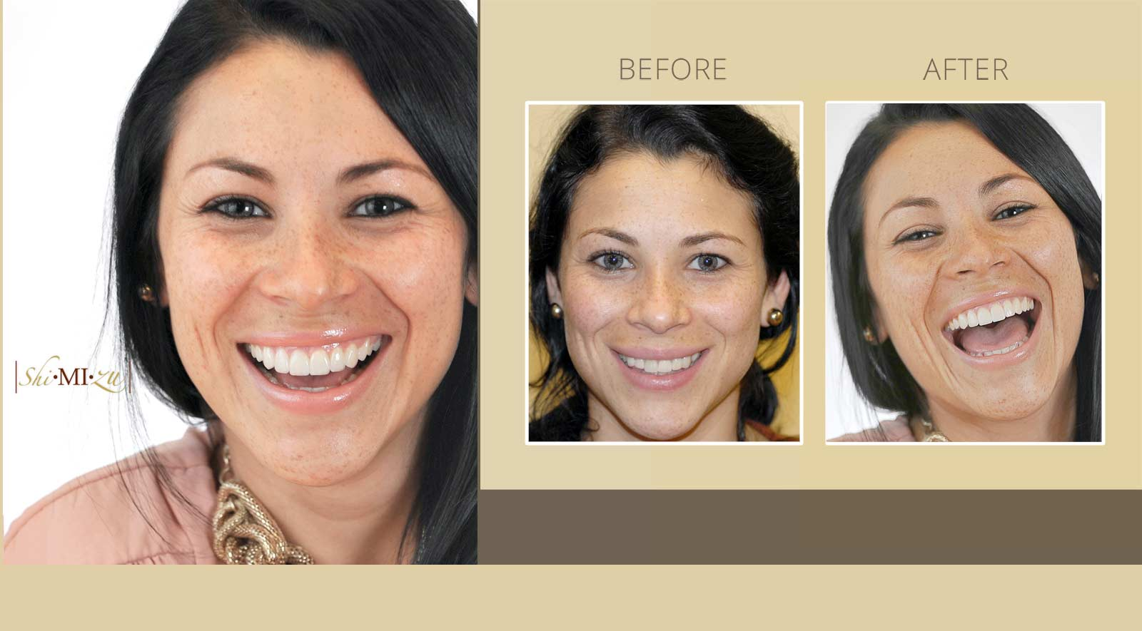 cosmetic denistry smile makeover before after