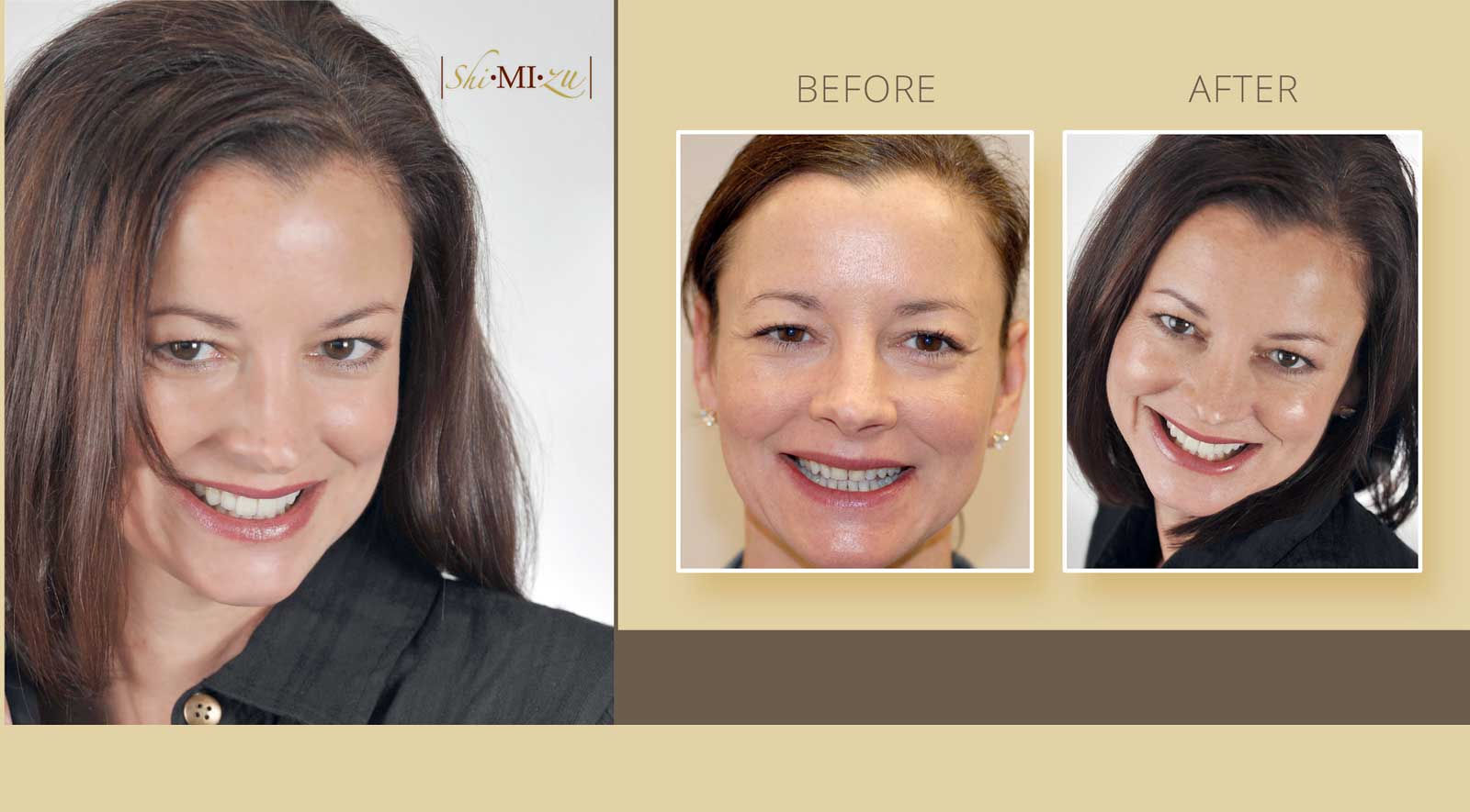smile make over with porcelain veneers