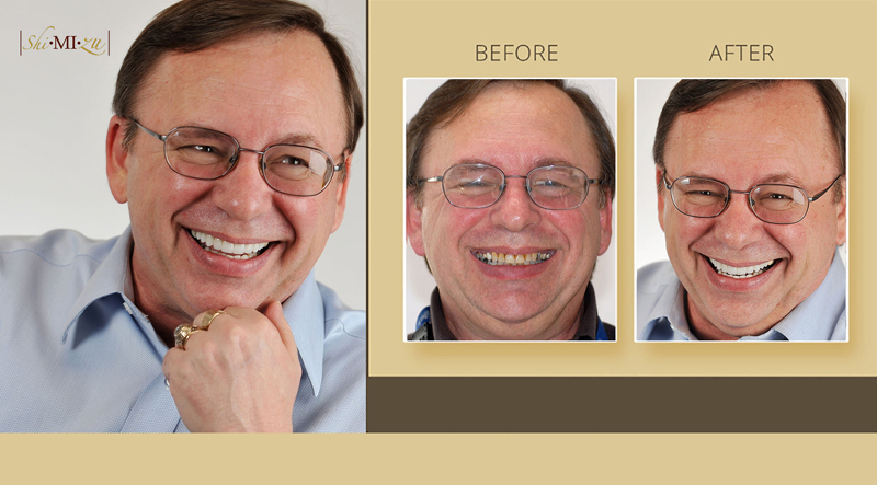 smile makeover tooth discoloration