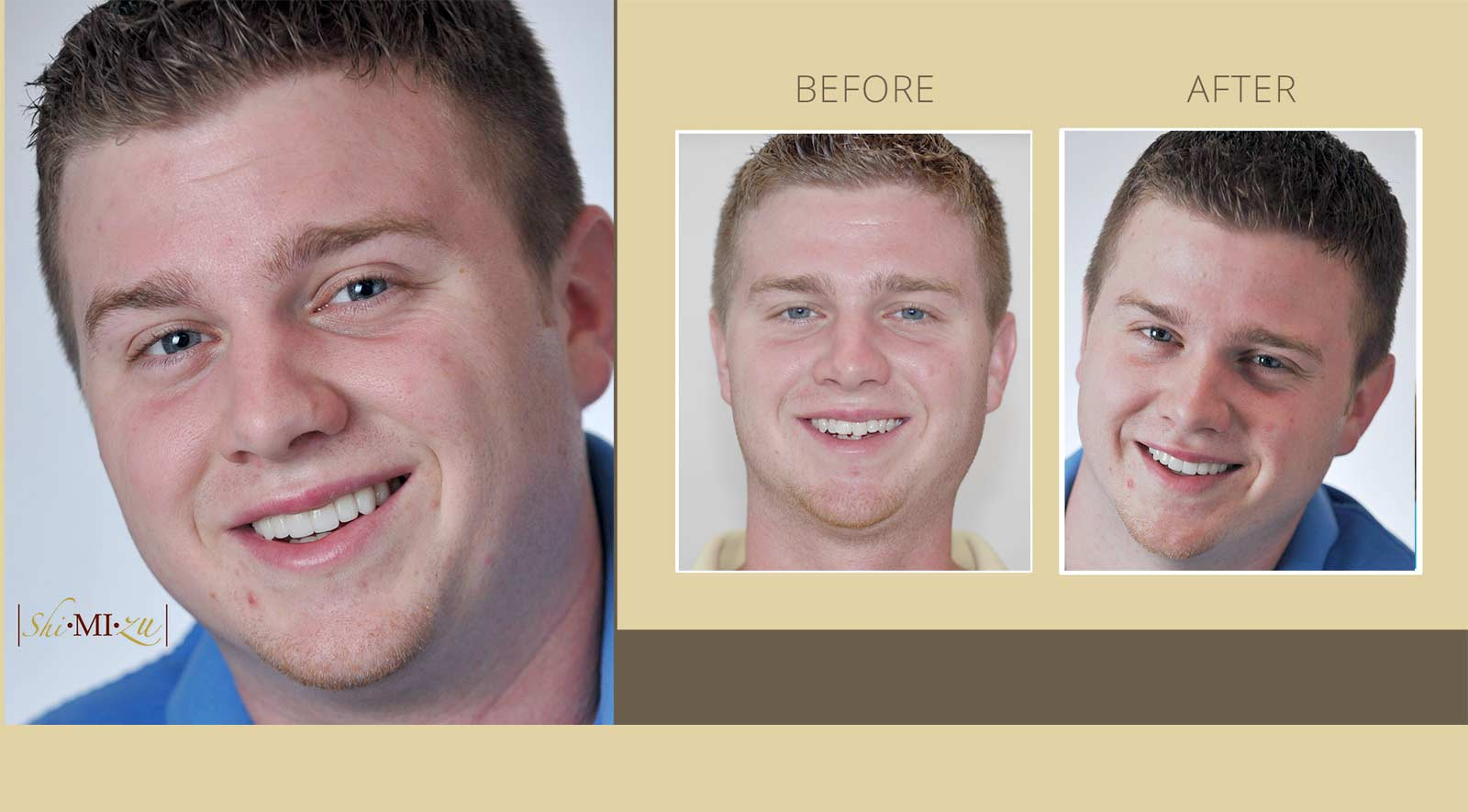 smile make over straighten your teeth in one month
