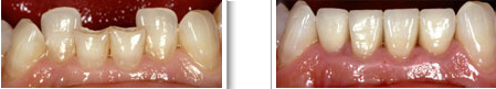 teeth restorations with crowns case 2